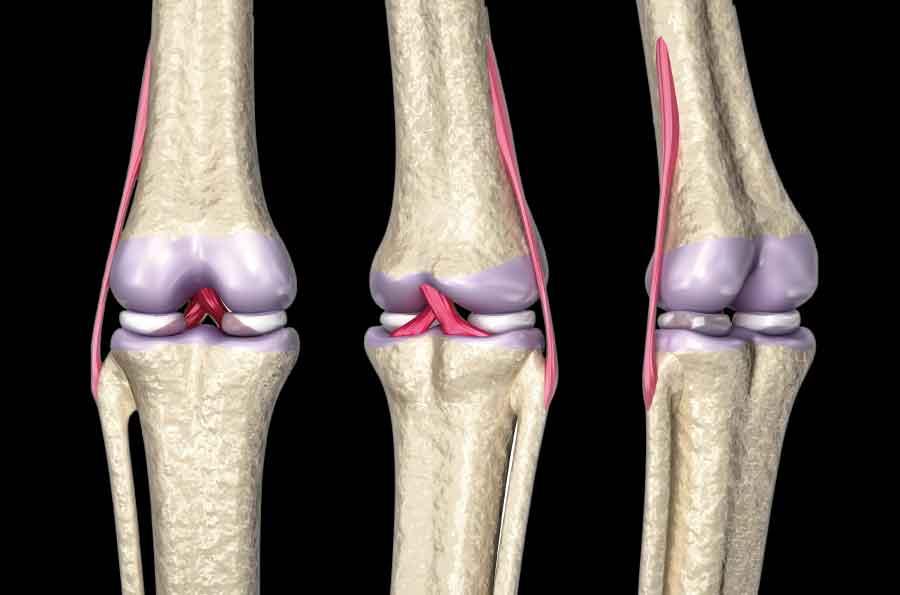ひざの靭帯